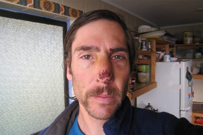 Andrés-zegers-herido