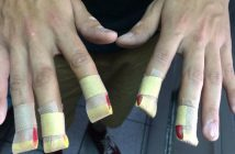 agujas bajo las uñas