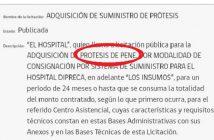 PROTESIS DE PENE 2